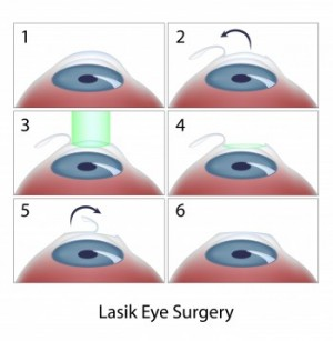 step-by-step illustration of LASIK eye surgery in 6 stages