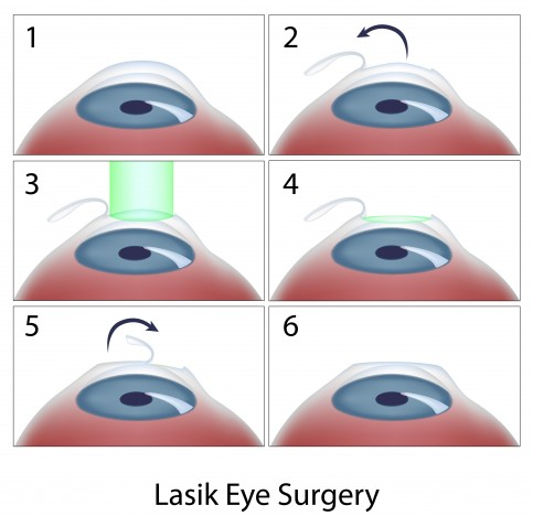 If you have undergone cataract surgery, LASIK is not recommended. However,  if you have small, stable congenital cataracts (present at birth), ...