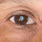 close up of a man's eye with a cataract