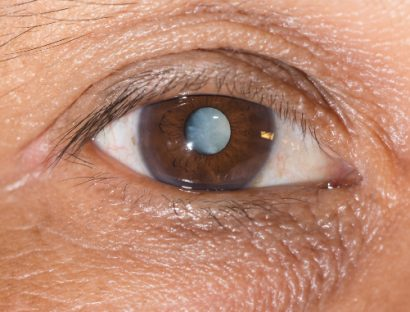 close up of an adult male's brown eye with a cataract