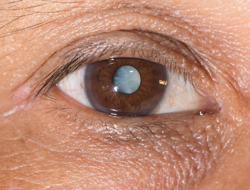 close up of a male brown eye with a cataract