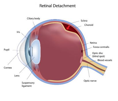 detailed medical illustration showing retinal detachment