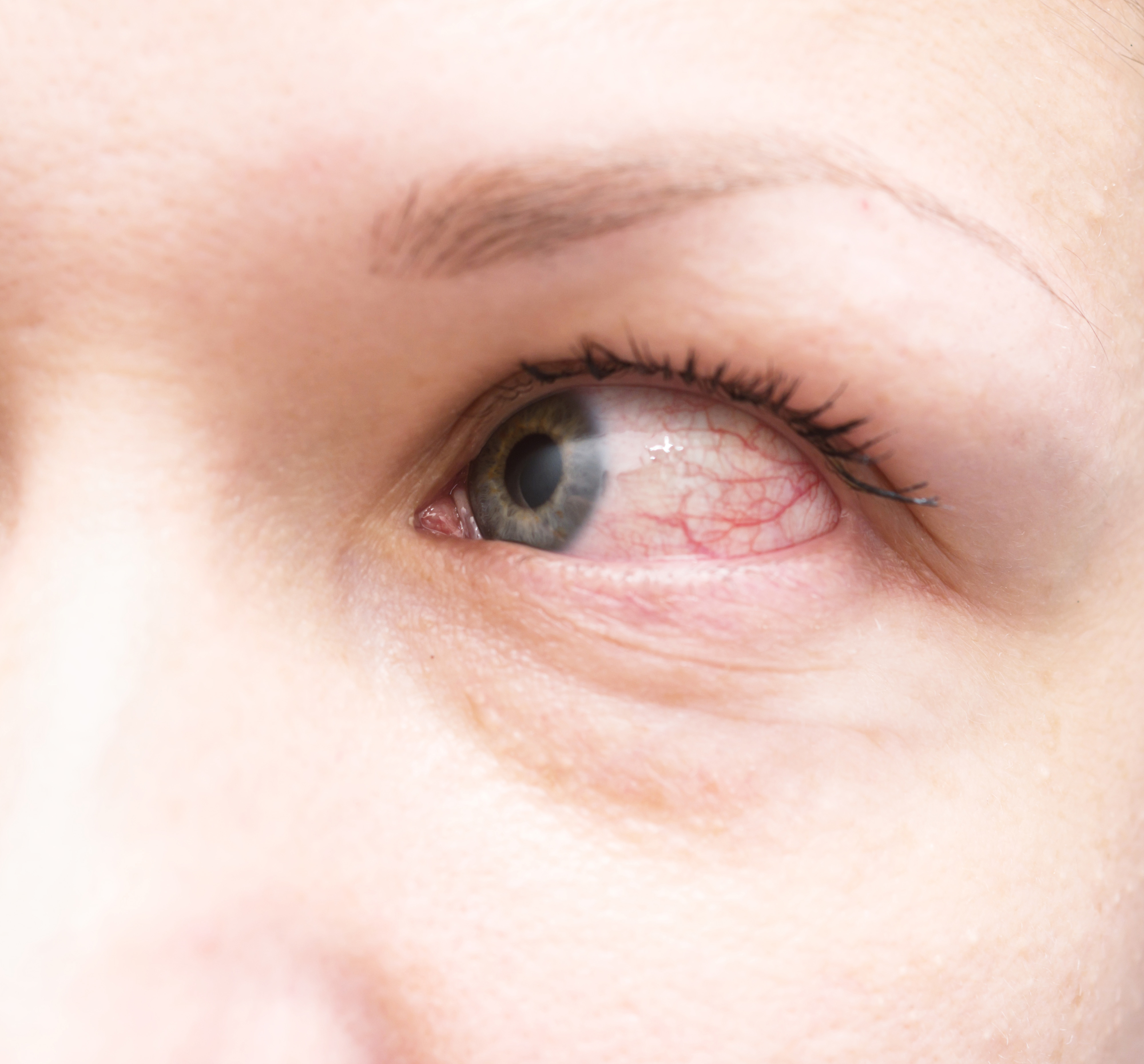 Allergic Conjunctivitis Vs Bacterial Pictures To Pin On: 9 Causes Of Red Eyes