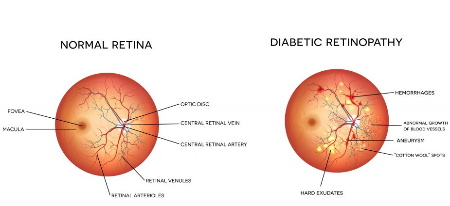 Diabetic Retinopathy Treatments Better Vision Guide