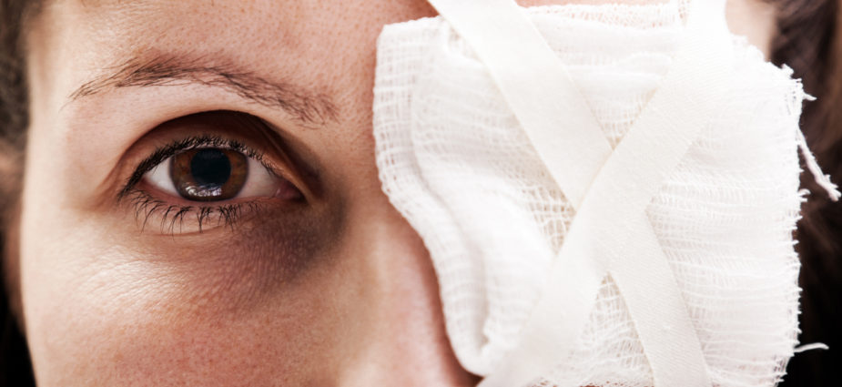 female eye injury patient with a bandage covering her left eye