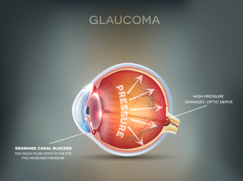 8 Common Causes Of Eye Pain Better Vision Guide